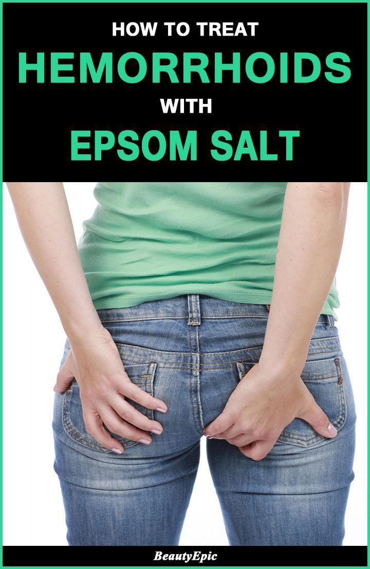 How to treat hemorrhoids with epsom salt