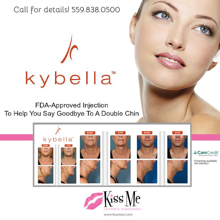 We've got an exciting line-up of wonderful April spa specials to share! Save big on Kybella, Botox, Juvederm, and more! Enjoy a special Day of Pampering or purchase gift certificates for Mom, in honor of Mother's Day for 15% off! Read all of our spa specials right on our website at www.kissmeci.com/spa-specials/  ‪#‎Kybella‬ ‪#‎Fresno‬ ‪#‎SpaSpecials‬