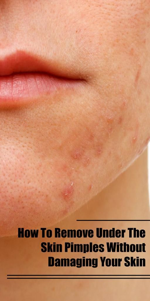 A blind pimple refers to acne that has grown benea…