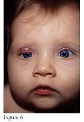 ... near a tear duct will block the lacrimal drainage system resulting in