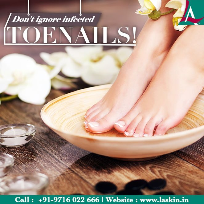 Is your toenail red, swollen or surrounded by fluid which causes discomfort when pressed? It may be a symptom of ingrown nail. Visit Dr. Latika Arya at L A Skin & Aesthetic Clinic today for consultation. Call +919716022666 now.  #LASkin #Aesthetic #Clinic #Skin #Infected #Toenail #Treatment