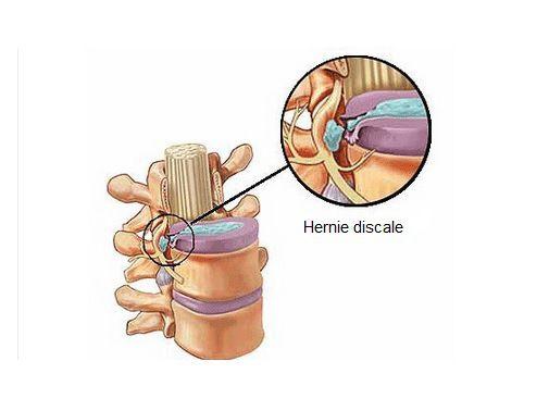 Les symptômes d'une hernie discale - Améliore ta Santé