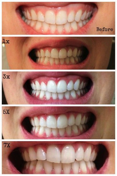 39 Best Stained Teeth Images On Pinterest Beauty Tips