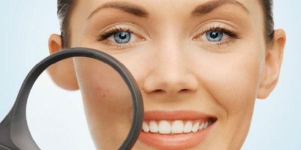 Cara menghilangkan flek hitam di wajah yang membandel – Flek hitam di wajah bekas jerawat terkadang ada yang susah hilangnya. Jadi walaupun jerawat sudah sembuh, kepercayaan diri seseorang t… http://caraputihalami.com/cara-menghilangkan-flek-hitam-di-wajah-yang-membandel-secara-alami