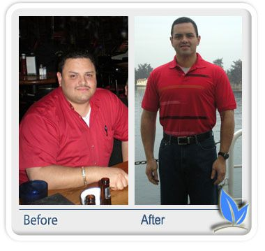 John P.  Spring, Texas  Well, today makes a year that I had made one of the best decisions in my life. It was about a month before my 32nd birthday and I was ready for a change. I was 6' and 340lbs considered morbidly obese, I had pretty much the whole gamut of illnesses (high BP, diabetes, high cholesterol, gout, sleep apnea)É and so on. After doing my research and a lot of reading here on OH, I decided...  Read the full story