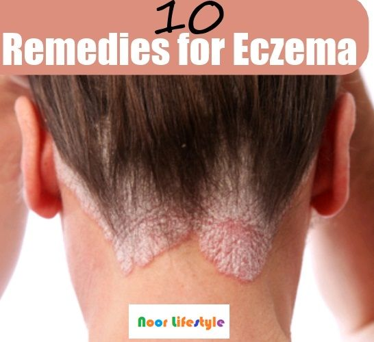 Natural home remedies: Eczema See More details at: http://bit.ly/1HMLfTb