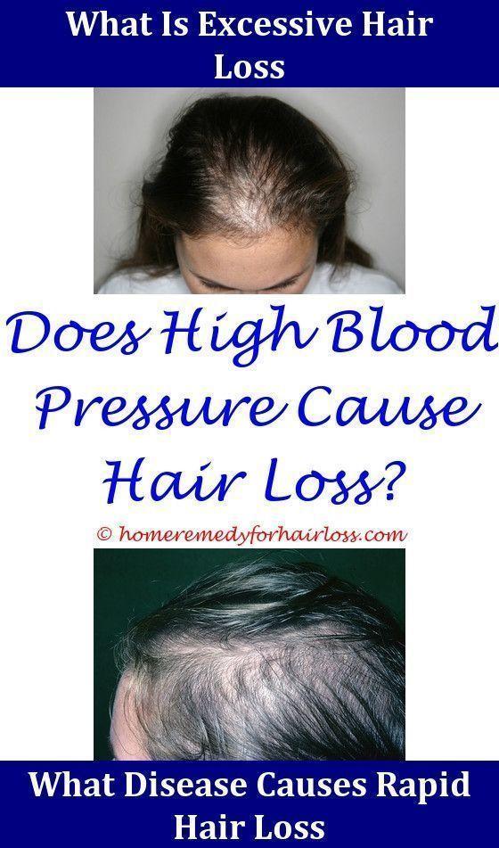 Hair Loss Anti Dandruff And Hair Loss Shampoo Iron Supplement