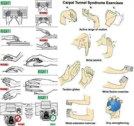 Carpal Tunnel Exercise Health Carpal Tunnel Syndrome Carpal