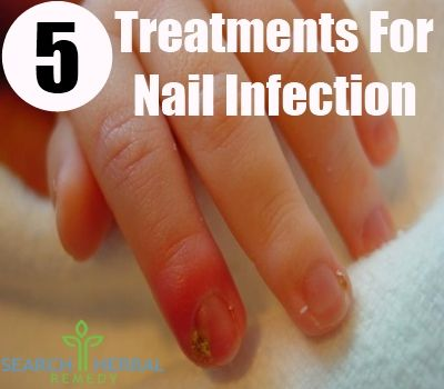 6 Effective Ways To Treat Nail Infection With Herbs | Search Herbal & Home Remedy