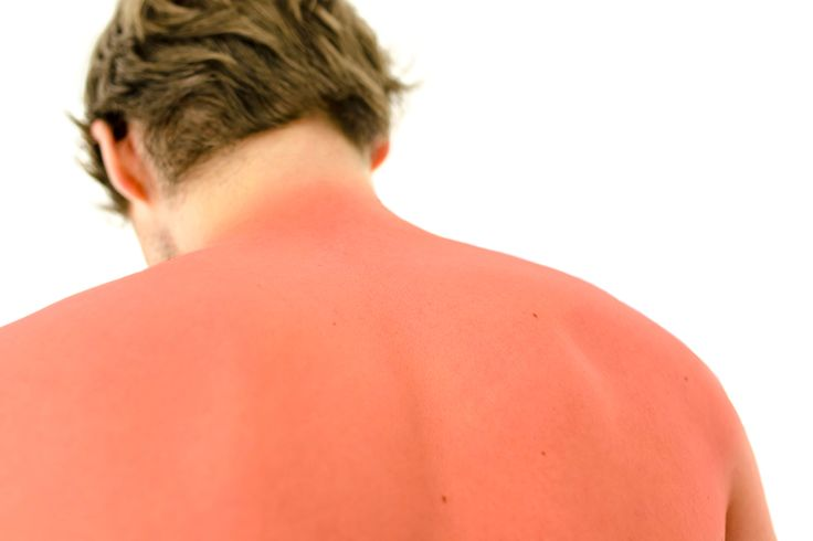 Sun poisoning isn't just painful, it can lead to dangerous effects.