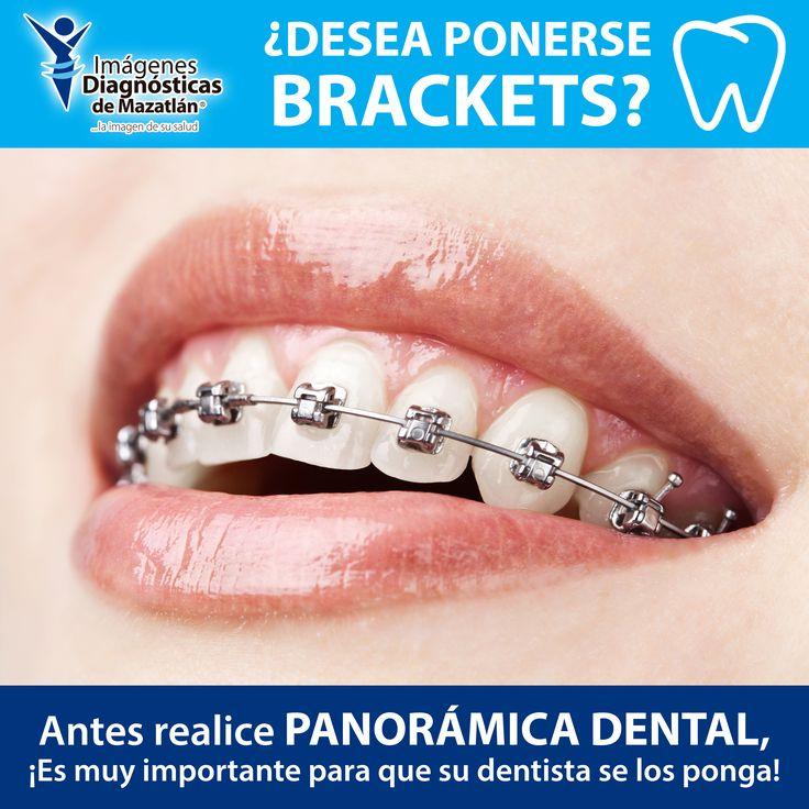 Si desea ponerse Brackets antes necesita el dentista valorar la posición de sus dientes. Realice una Panorámica Dental.