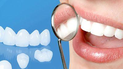 Mặt dán sứ Veneer được coi là phục hình thẩm mỹ vừa hiệu quả, ăn nhai tốt lại không làm tổn thương răng thật nên nhận được rất nhiều quan tâm của khách hàng.