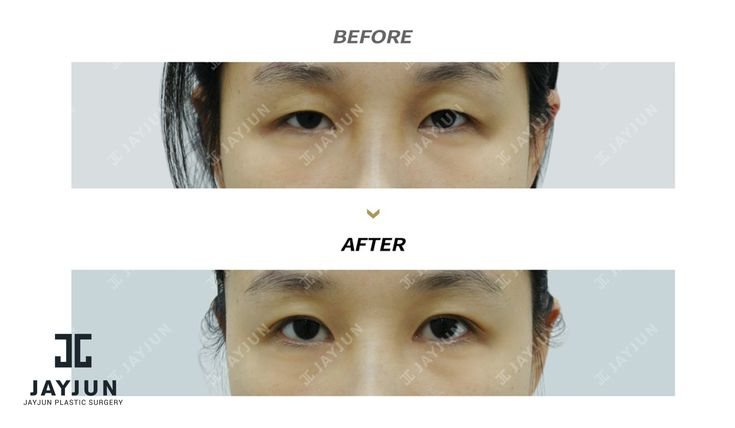 korean plastic surgery korea cosmetic surgery korean plastic surgery before and…