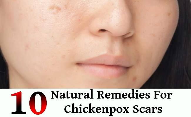 Agree, the home remedies for facial scars you