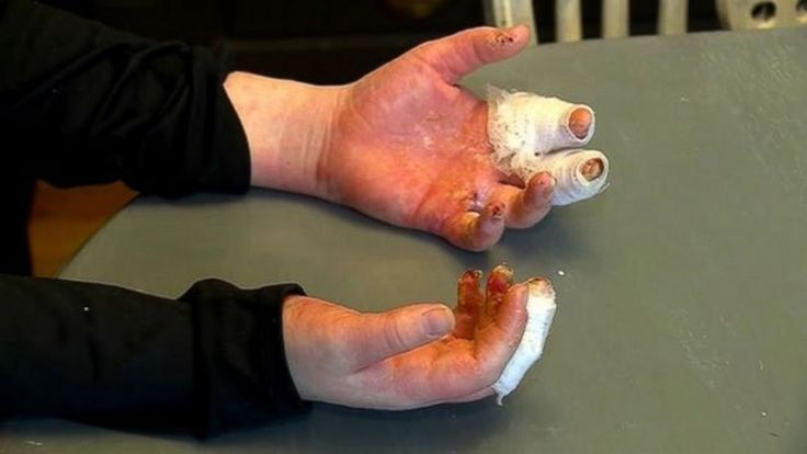 Kid suffers 3rd-degree burns after DIY slime project ---->>> A Massachusetts mother said her fifth-grader suffered severe burns after playing with homemade slime, a project she said she's done with her daughter many times before without incident. Siobhan Quinn said her 11-year-old daughter, Kathleen, endured second- and third-degree burns on her hands after...