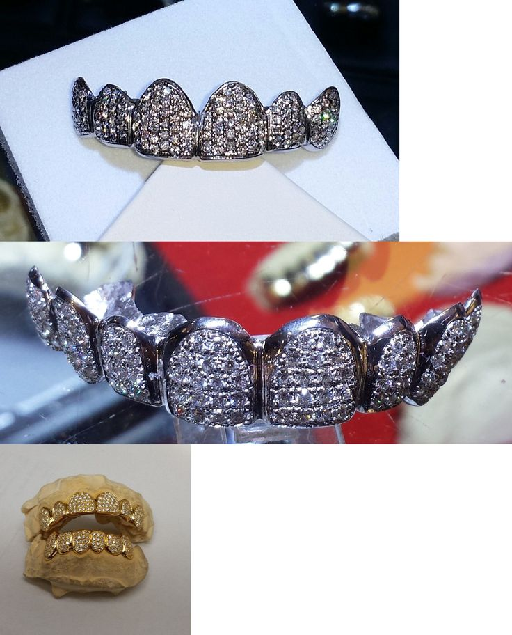 Grillz Dental Grills 152808: Iced Out Diamond Grillz 6Pc Top Gold Teeth Solid Yellow Or White Gold Custom Fit -> BUY IT NOW ONLY: $1299 on eBay!
