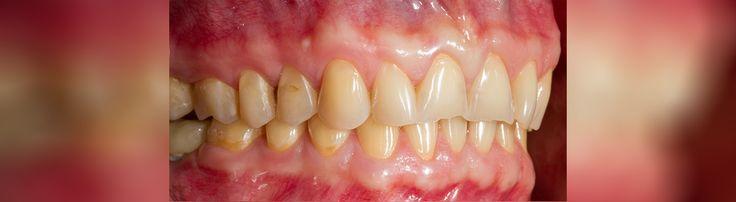 Meilleure orthodontie en Roumnaie pour Vous ! Nous vous invitons à voir ici et contactez-nous immédiatement: http://www.intermedline.com/dental-clinics-romania/ #tourismedentaire #tourismedentaireenRoumanie #voyagedentaire #voyagedentaireenRoumanie #cliniquedentaire #cliniquedentaireenRoumanie #dentistes #dentistesenRoumanie #soinsdentaires #soinsdentairesenRoumanie #orthodontie #orthodontieenRoumnaie #orthodontiste #orthodontisteenRoumanie #traitementorthodontique