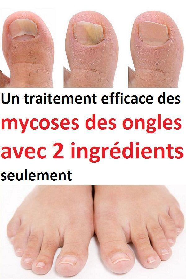 mycose ongle pied traitement efficace