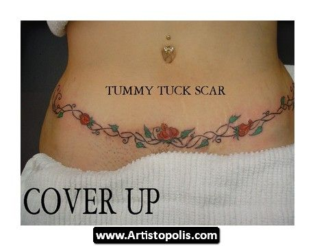 Tummy%20Tuck%20Tattoo%2005 Tummy Tuck Tattoo 05