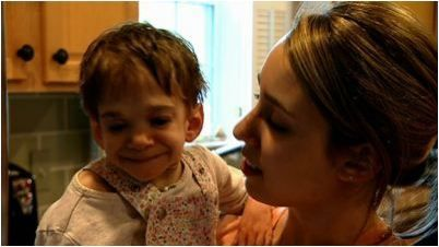 Meet Brooke Greenberg 20-year-old woman trapped in toddler's body
