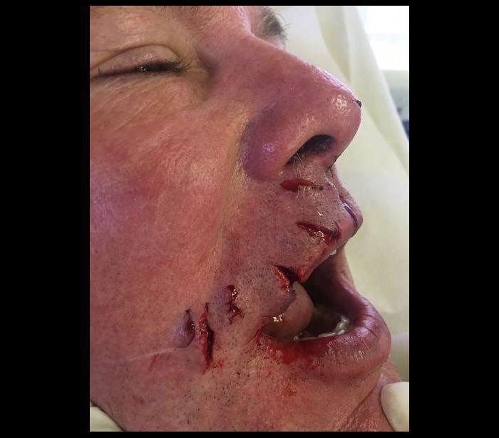 Dentista é atacado por tubarão   é salvo por lança de pesca