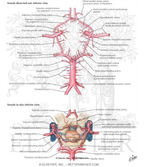 how to draw the circle of willis