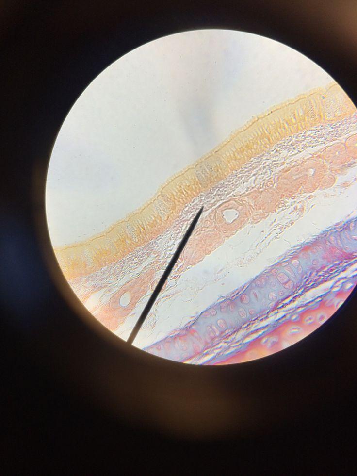 Histology   simple columnar epithelium    simple cuboidal epithelium   psuedostratified epithelium    skeletal   keratinized simple squamous epithelium    adipose   fibrocartilage    simple cuboidal epithelium    Psuedostratified epithelium    elastic   hyaline cartilage   non-keratinized stratified squamous   stratified cuboidal epithelium    blood - identify RBC and WBC   smooth muscle   neuron    areolar    bone   stratified squamous