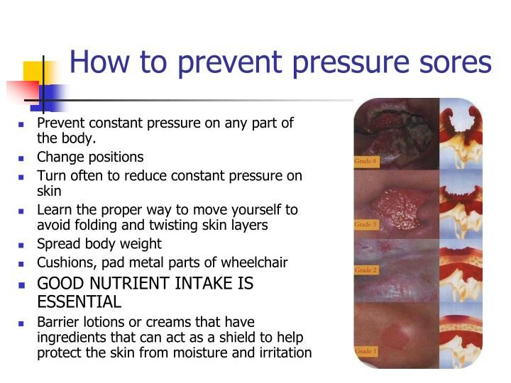 PPT - How Nutrition Plays a Role in Wound Healing