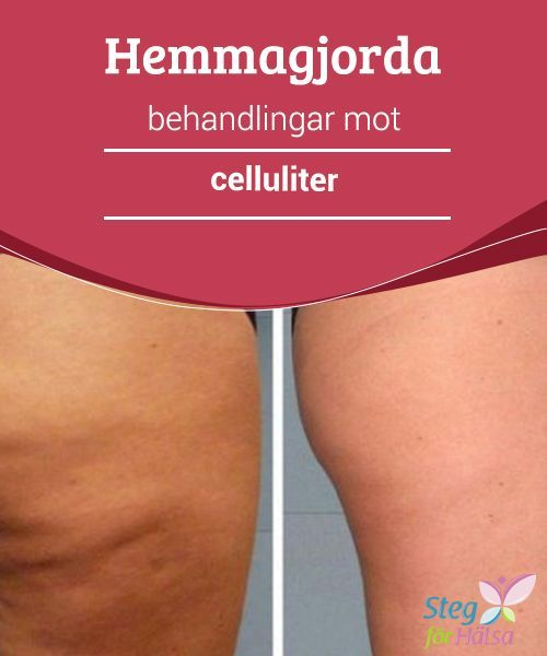 massage mot celluliter