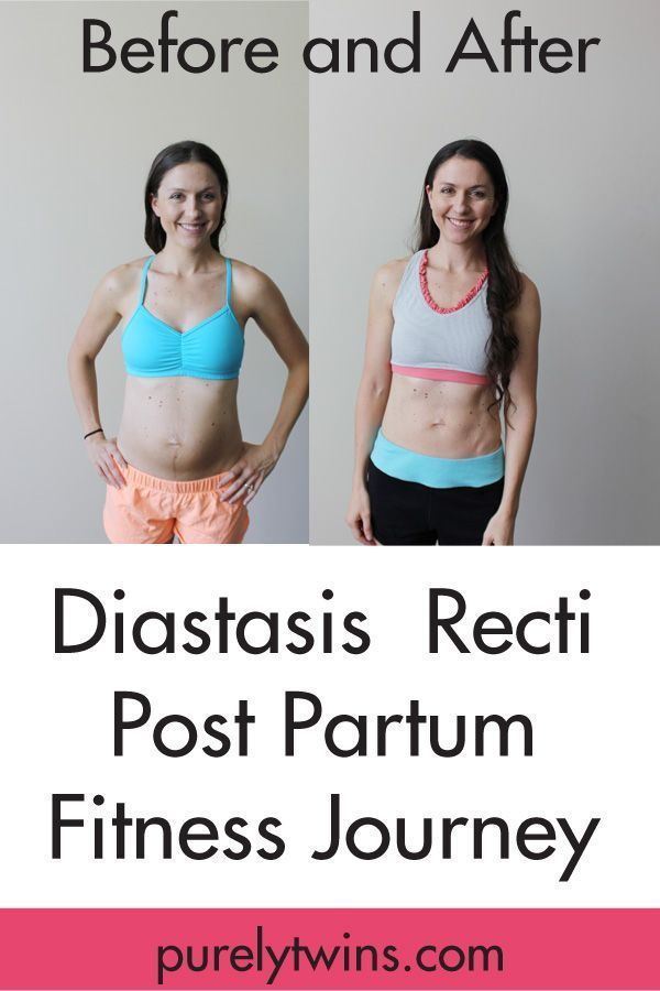 "Before and after post partum fitness journey to close the separation between your abdominal muscles will constantly cause the ""pooch"". Healing your ""mummy tummy""  Diastasis Recti: how to heal from having kids and get your abs back together with the right exercises, lifestyle habits and mindset. via @purelytwins"