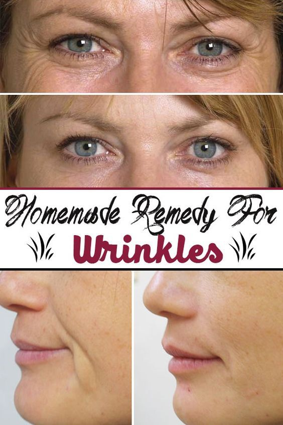 Homemade remedy for wrinkles: