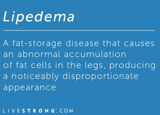 Lipedema: The Fat-Storing Disease Immune to Diet and Exercise | LIVESTRONG.COM