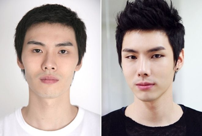 Korean Male Face Plastic Surgery Chin And Nose