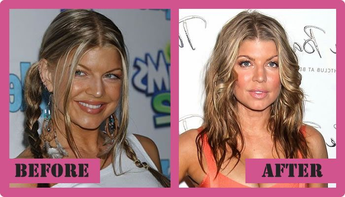 Fergie Plastic Surgery Before And After Fergie Plastic Surgery #FergiePlasticSurgery #Fergie #gossipmagazines