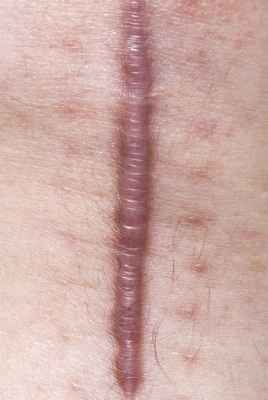 MODEL RELEASED. Keloid scar on the knee of a 71 year old man...