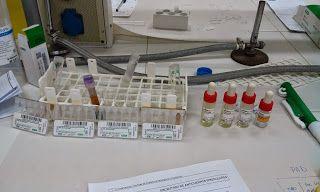 Para realizar esta prueba necesitamos: Tarjetas Sangre con EDTA Tubos de ensayo Gradillas C3d LISS Control coombs y centrífuga de tarjetas