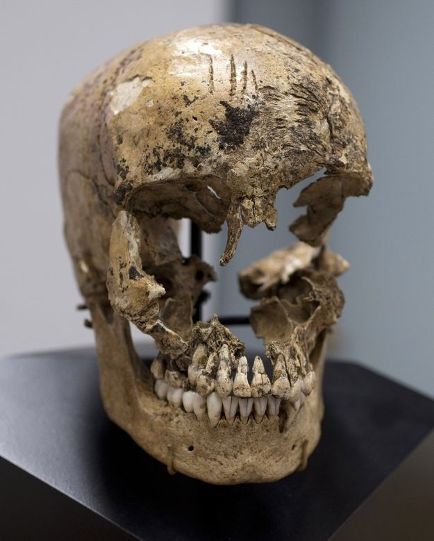 The four shallow, closely spaced chop marks to her forehead indicate a failed first attempt to open the skull, Owsley explained. The close proximity of the blows suggests that she was already dead, or they would have been more haphazard. | Cannibal Colonists Devoured 14-Year-Old Girl At Jamestown