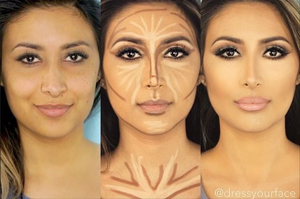 Before and after photos of Face Contouring | Women :: Rinnoo.net ...