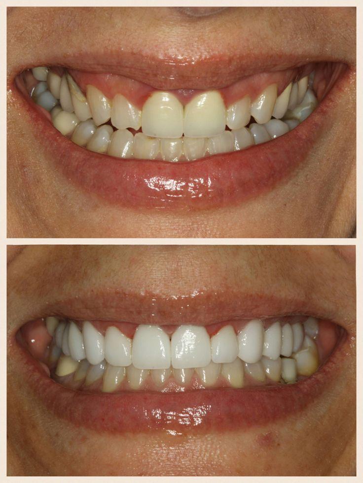 Veneer Cases Teeth Veneers Teeth Dental Veneers Dental