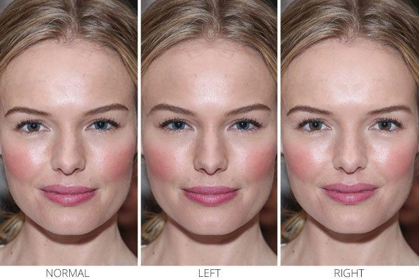 Facial Symmetry And Beauty 115