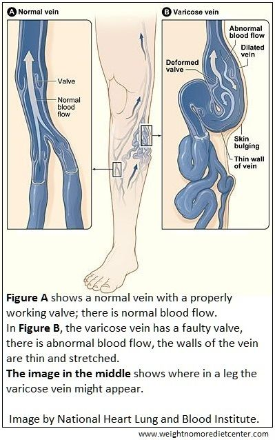 In a slim person, bulging veins are usually visible on the skin of the calf.  However, swollen veins in the obese are not visible on the skin surface due to excess fat.  An obese person's varicose veins won't present themselves until much later when the problem is much worse. (Read more: http://weightnomoredietcenter.com/articles/article.php?p=Bulging-Waistlines--Bulging-Veins&ref=/articles/index.php&pid=order_by=Varicose%20Veins)