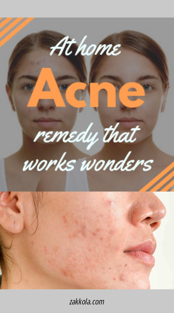 Read information on acne. Just click on the link …