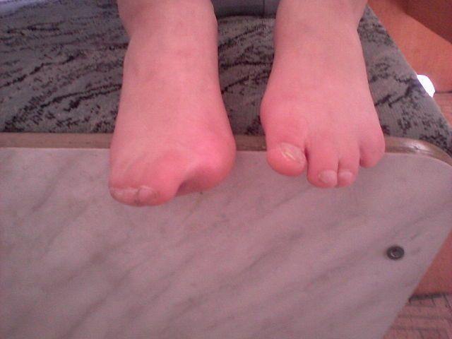 Best Shoes For Toe Amputees