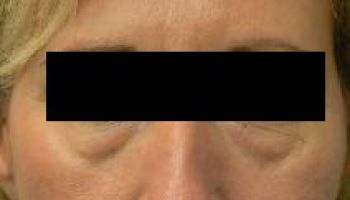 ¿Qué anestesia se usa en la cirugía de párpados o blefaroplastia? Dr. Humberto Gacitúa Garstman