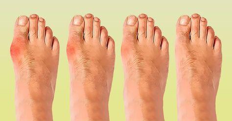 Косточки на ногах — это причина страданий многих женщин. Боль при ходьбе, дискомфорт при ношении обуви, некрасивый внешний вид, деформация пальцев — неприятные спутники растущей шишки. Причин косточки на большом пальце (вальгусной деформации пальца стопы) целый ряд: слишком тесная обувь, неправильное питание, наследственность, плоскостопие, ревматизм. Как правило, для избавления от шишки на ноге ортопеды назначают корректирующие накладки, которые требуют постоянного и длительного ношения, а…