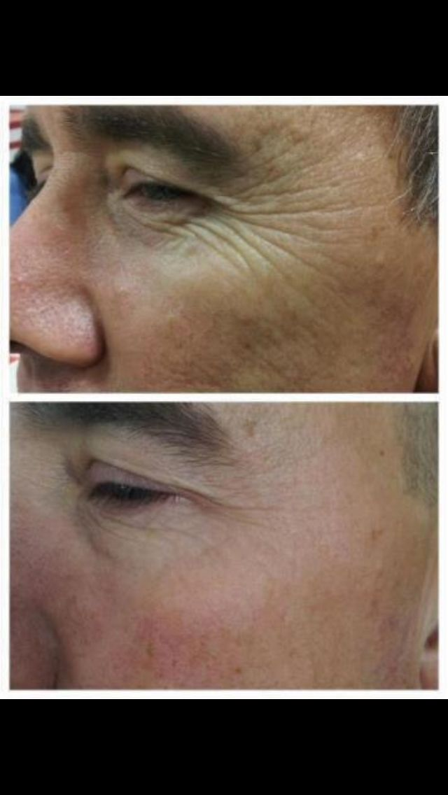 Buy your Nerium & learn more at http://www.neriumproducts.com/default.aspx?ID=rescuedog