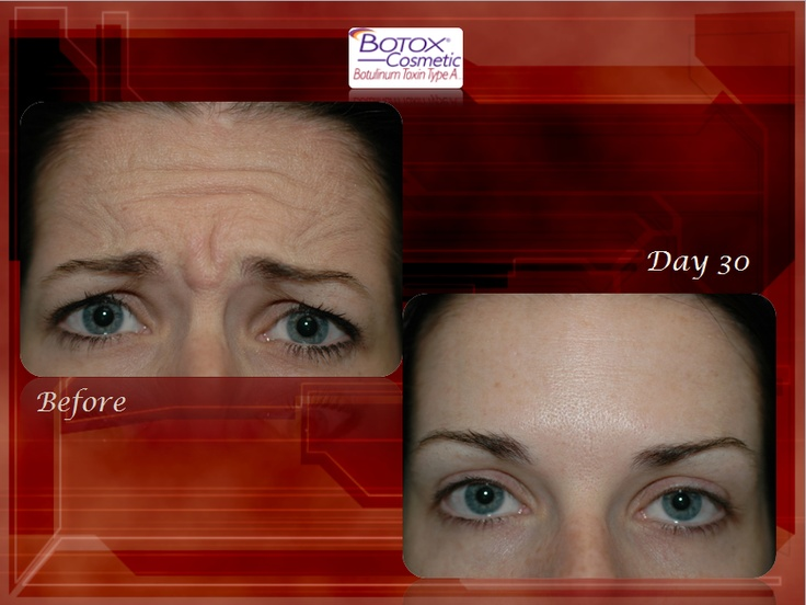 Before and after botox cosmetic with dr mack tampa fl
