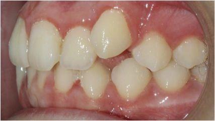 Imagen antes del tratamiento con ortodoncia Damon en nuestra Clínica dental Los Valles, de Guadalajara (España).