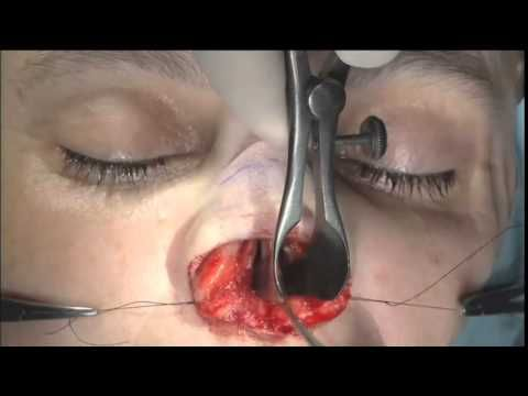 Steven J Pearlman MD FACS -This video focuses on the # ...