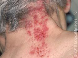 shingles rash on the back of a neck